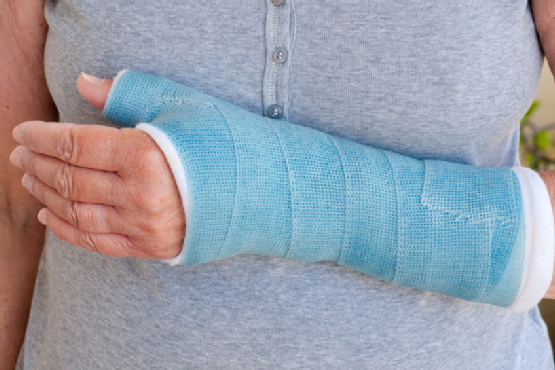 Close-up of woman's arm in blue cast